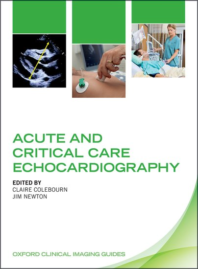 Acute and Critical Care Echocardiography sandra rief f the adhd book of lists a practical guide for helping children and teens with attention deficit disorders