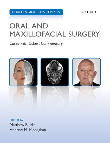 Challenging Concepts in Oral and Maxillofacial Surgery worst–case scenarios