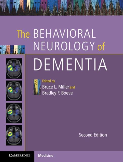 The Behavioral Neurology of Dementia the autoimmune diseases