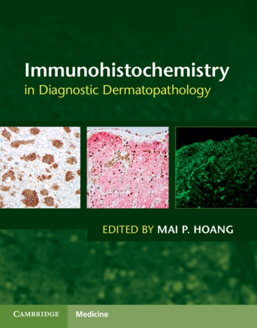 Immunohistochemistry in Diagnostic Dermatopathology a princess of mars