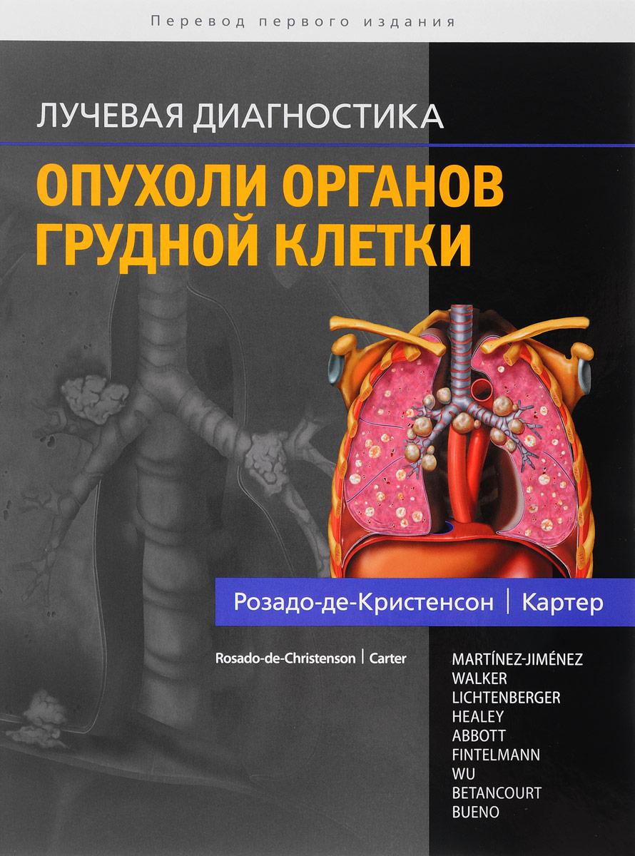 Розадо-де-Кристенсон, Картер Лучевая диагностика. Опухоли органов грудной клетки розадо де кристенсон м картер б и др лучевая диагностика опухоли органов грудной клетки