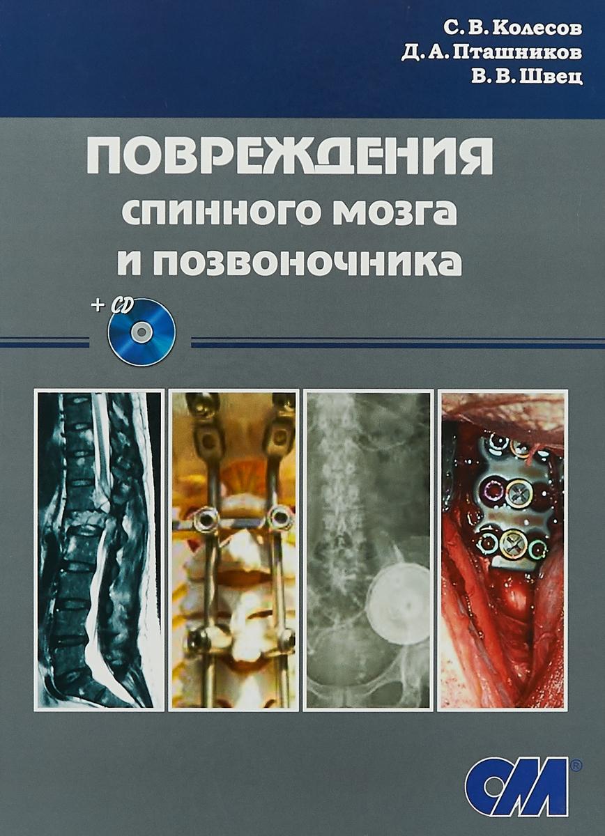 Повреждения спинного мозга и позвоночника + CD (с записью 5 операций)