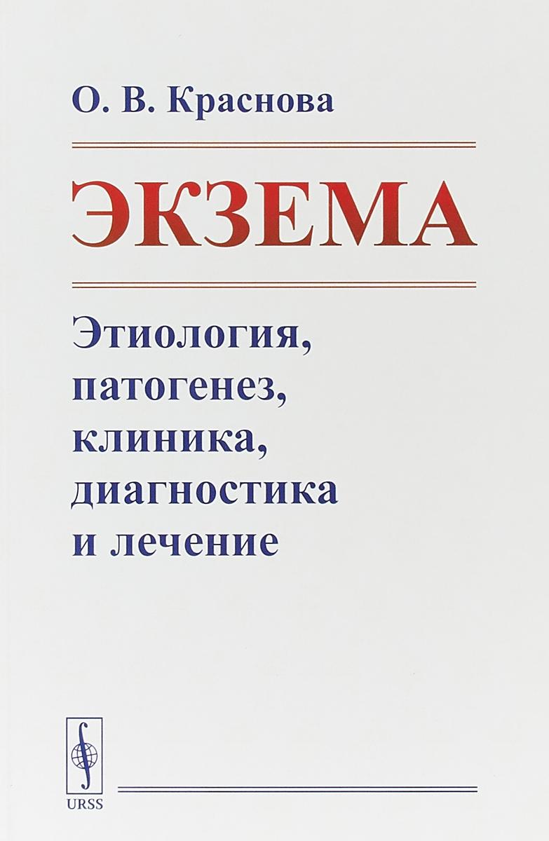 Экзема: Этиология, патогенез, клиника, диагностика и лечение. О.В. Краснова