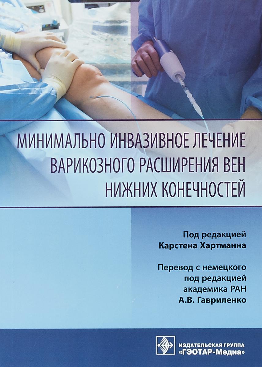 Минимально инвазивное лечение варикозного расширения вен. К. Хартман,А. В. Гавриленко