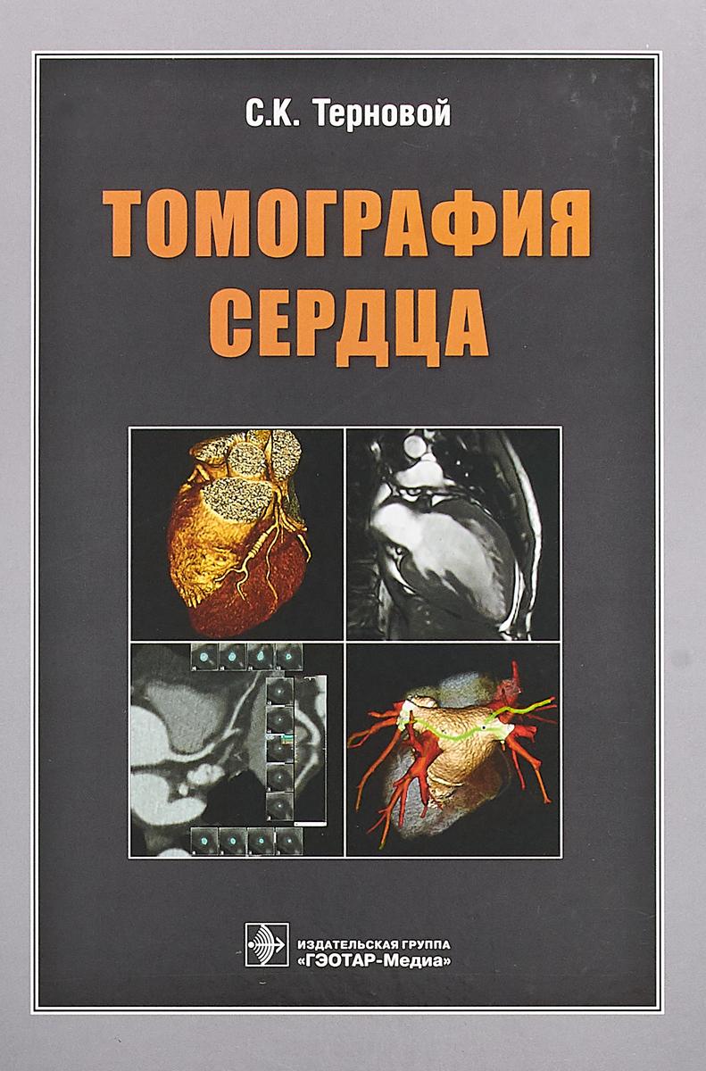 Томография сердца. С. К. Терновой