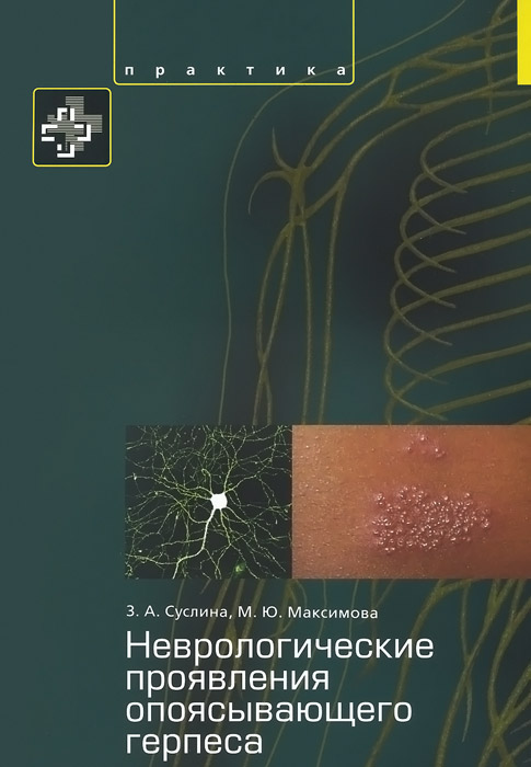 Неврологические проявления опоясывающего герпеса. Пособие для врачей