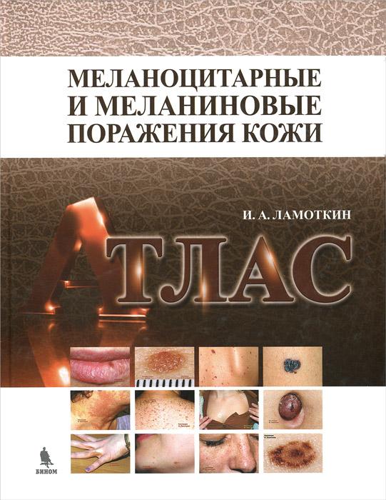 Меланоцитарные и меланиновые поражения кожи. Атлас. Учебное пособие, И. А. Ламоткин