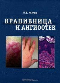 Крапивница и ангиоотек, П. В. Колхир