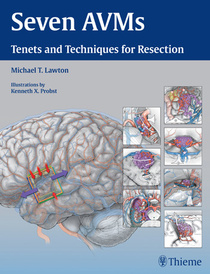 Seven AVMs: Tenets and Techniques for Resection,