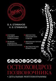 Остеохондроз позвоночника, Епифанов В.А.