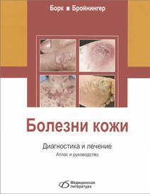Болезни кожи. Диагностика и лечение. Атлас и руководство, Конрад Борк, Вольфганг Бройнингер