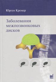 Заболевания межпозвонковых дисков, Юрген Кремер