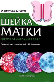 Шейка матки. Цитологический атлас, Э. Титмушш, К. Адамс