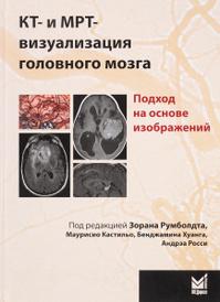 КТ- и МРТ-визуализация головного мозга. Подход на основе изображений,