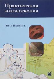 Практическая колоноскопия. Методика, рекомендации, советы и приемы, Гвидо Шахшаль