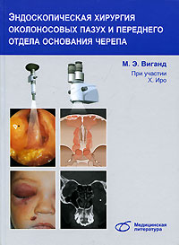 Эндоскопическая хирургия околоносовых пазух и переднего отдела основания черепа, М. Э. Виганд, Х. Иро