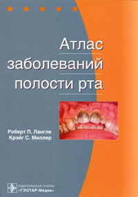 Атлас заболеваний полости рта, Роберт П. Лангле, Крэйг С. Миллер