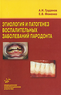 Этиология и патогенез воспалительных заболеваний пародонта, А. И. Грудянов, Е. В. Фоменко