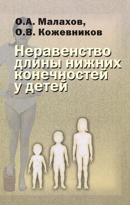Неравенство длины нижних конечностей у детей, О. А. Малахов, О. В. Кожевников