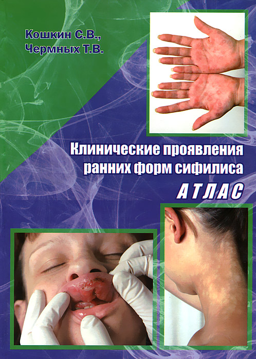 Клиническое проявление ранних форм сифилиса. Атлас, С. В. Кошкин, Т. В. Чермных