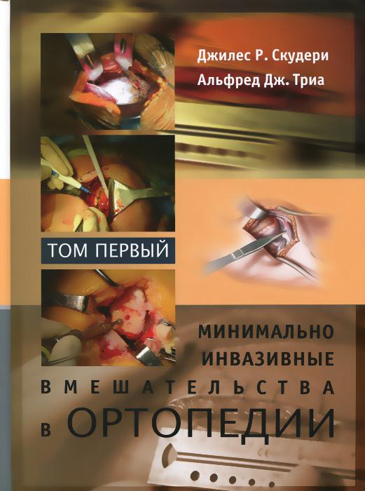 Минимально инвазивные вмешательства в ортопедии. В 2 томах. Том 1, Джилес Р. Скудери, Альфред Дж. Триа