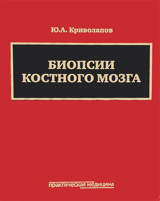 Биопсии костного мозга. Научно-практическое издание (+ DVD-ROM), Ю. А. Криволапов