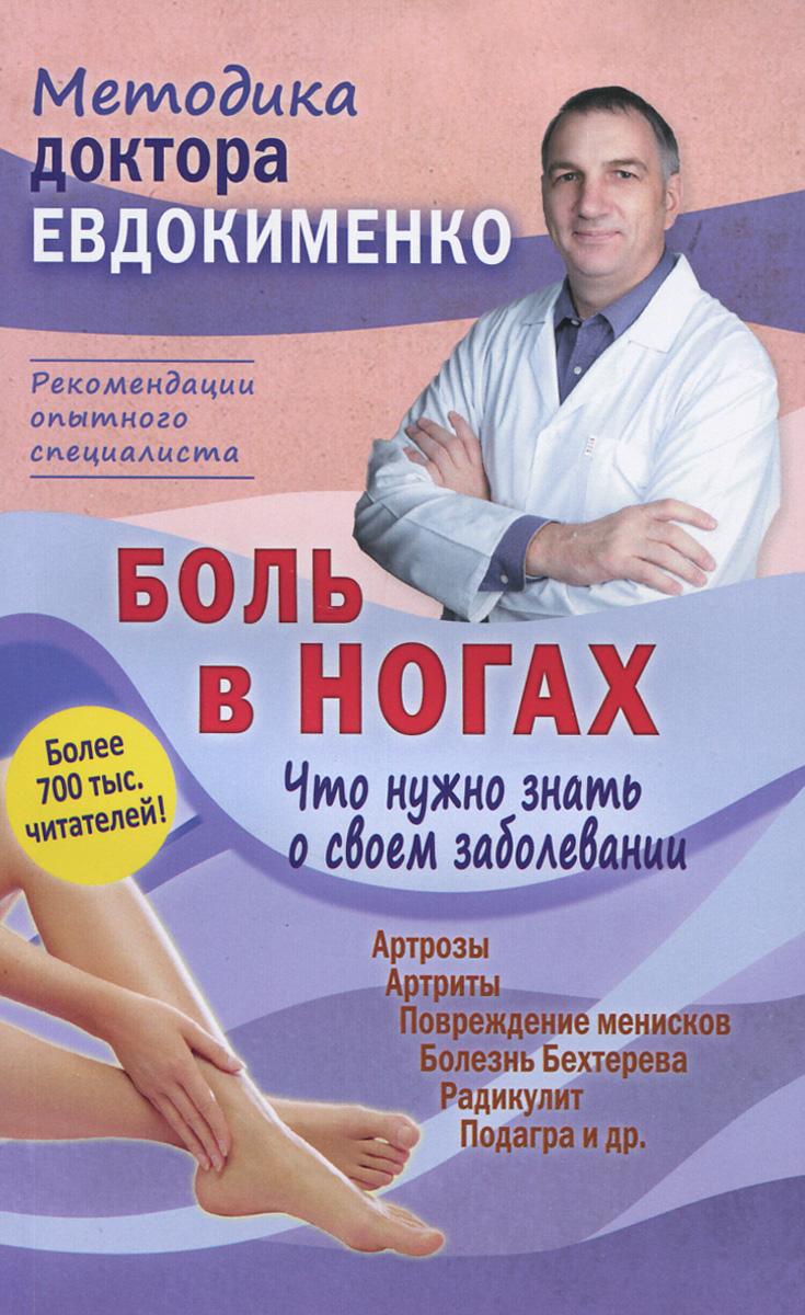 Боль в ногах. Что нужно знать о своем заболевании, П. В. Евдокименко