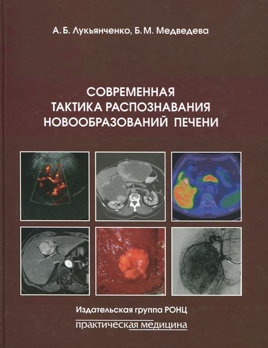 Современная тактика распознавания новообразований печени, А. Б. Лукьянченко, Б. М. Медведева