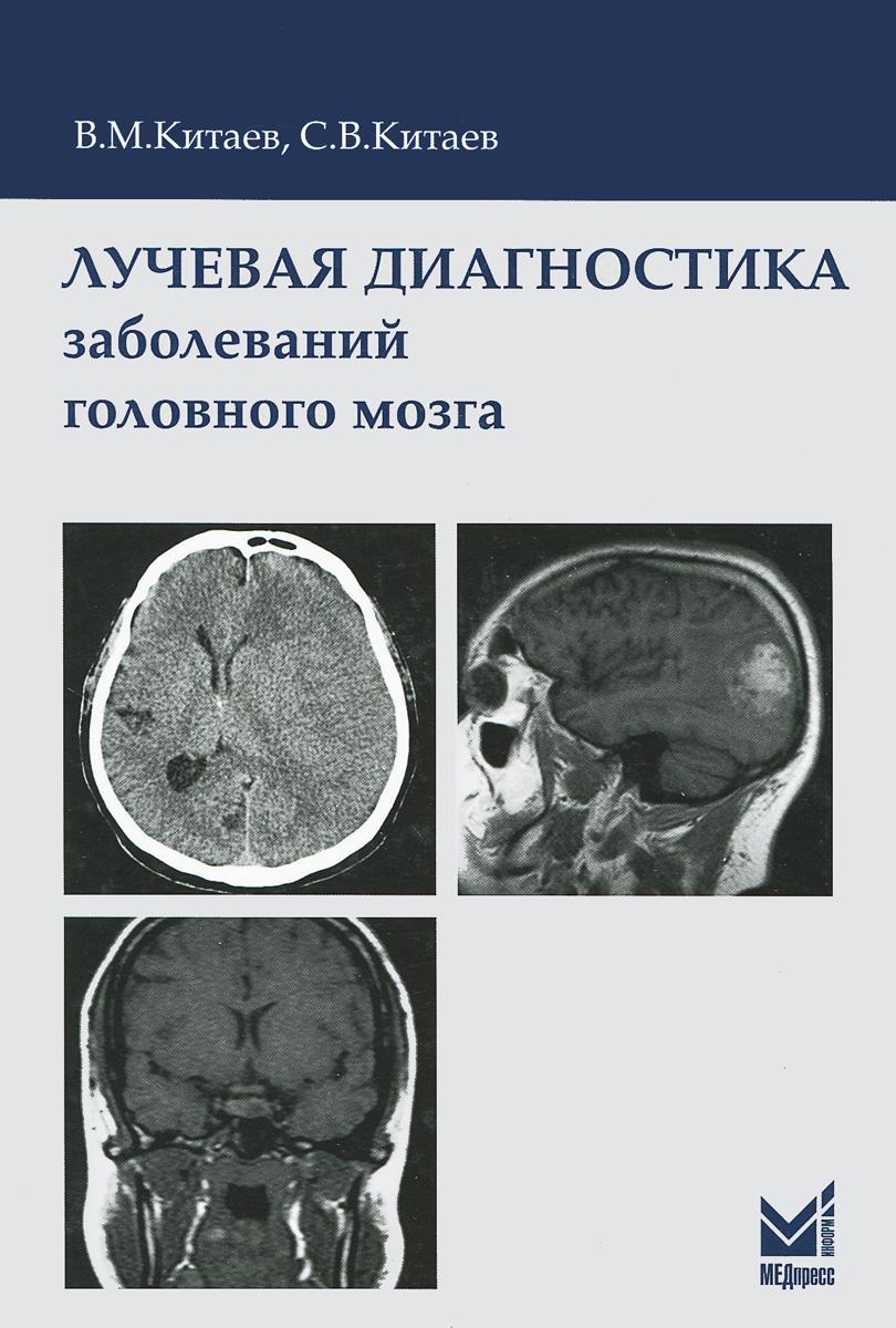 Лучевая диагностика заболеваний головного мозга, В. М. Китаев, С. В. Китаев