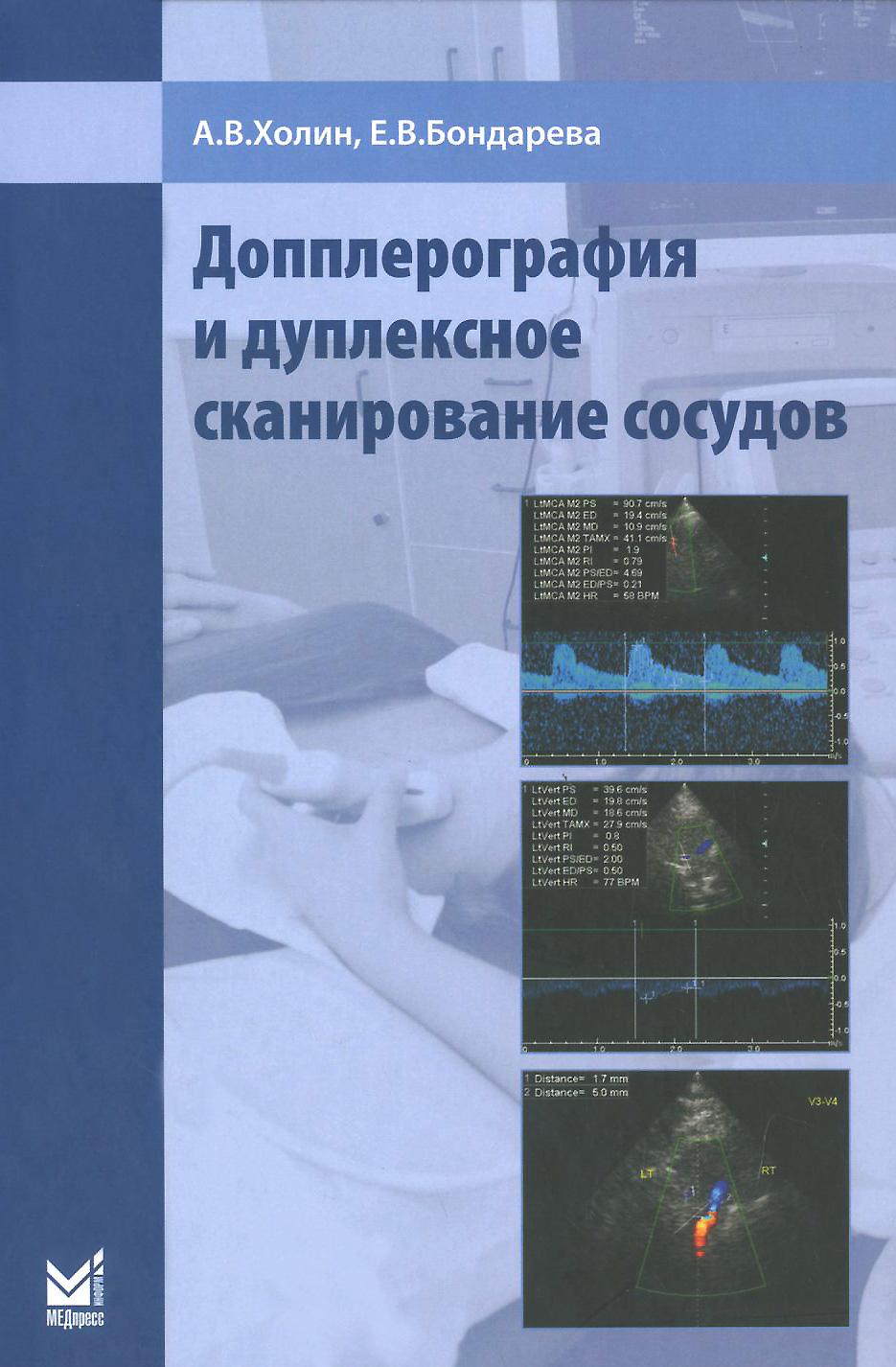 Допплерография и дуплексное сканирование сосудов, А. В. Холин, Е. В. Бондарева