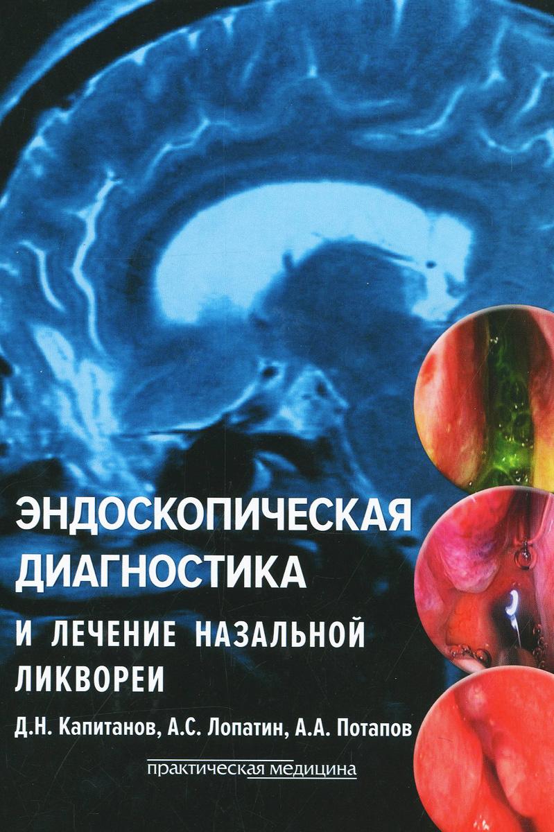 Эндоскопическая диагностика и лечение назальной ликвореи, Д. Н. Капитанов, А. С. Лопатин, А. А. Потапов