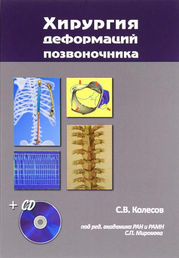 Хирургия деформаций позвоночника (+ CD)